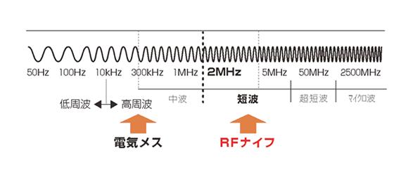 RFナイフの特長(4.0MHzの周波数)
